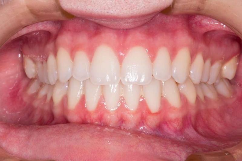 整牙步骤牙齿矫正的正确方法